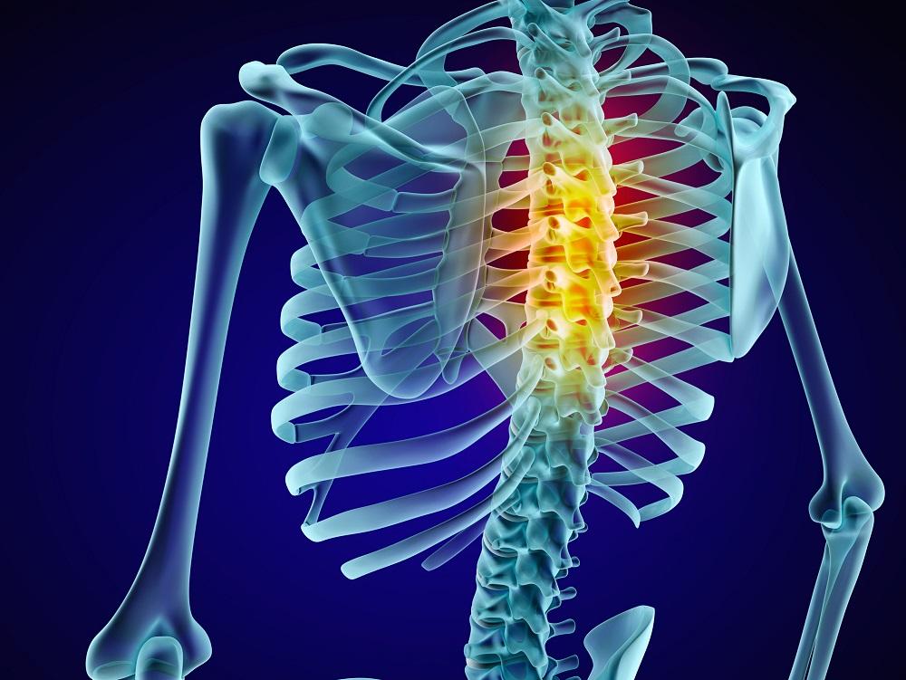 Spine Degeneration